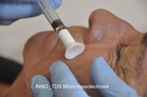 INNO_TDS Micro mesotechniek 001